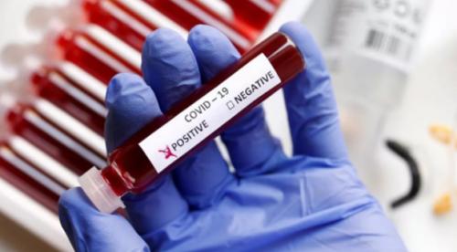 тест на коронавирус цена спб