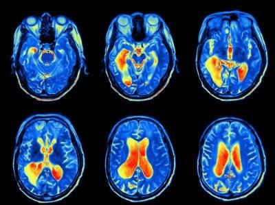МРТ глаз с контрастом