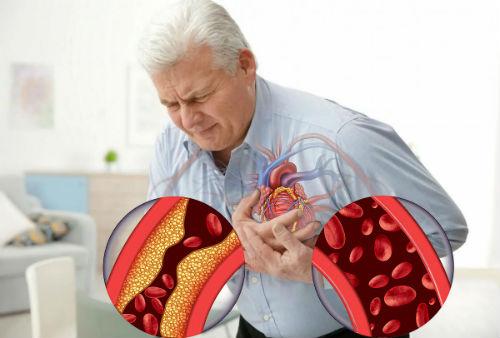 ишемическое поражение
