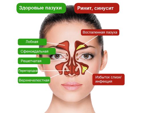 воспаления пазух носа