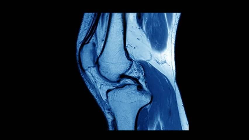 Санкт-петербург обследование коленного сустава блок сустава